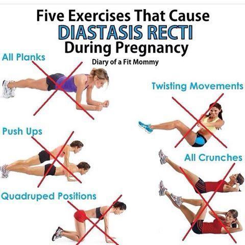 5 exercícios que podem causar diástase na gravidez