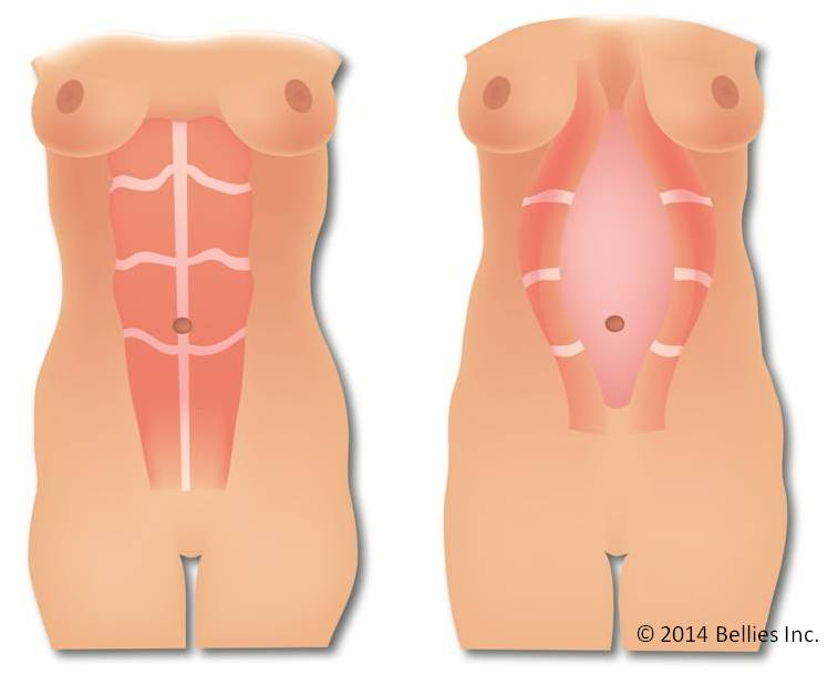 Diástase na gravidez - riscos do hipopressivo
