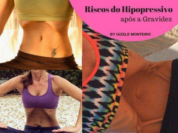 Riscos do Hipopressivo após a gravidez