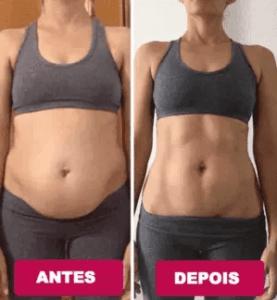 diastase abdominal depois da gravidez