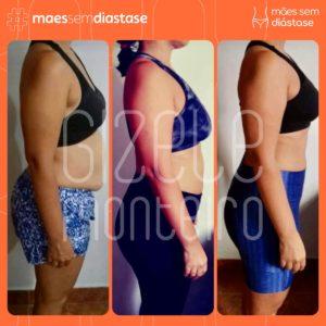 como tratar a diastase Gizele Monteiro