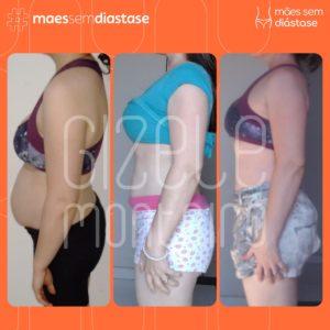 diastase abdominal antes e depois