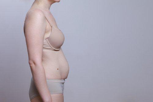 Diástase após a gravidez Mulher que engravidou e ficou com diástase depois do parto.