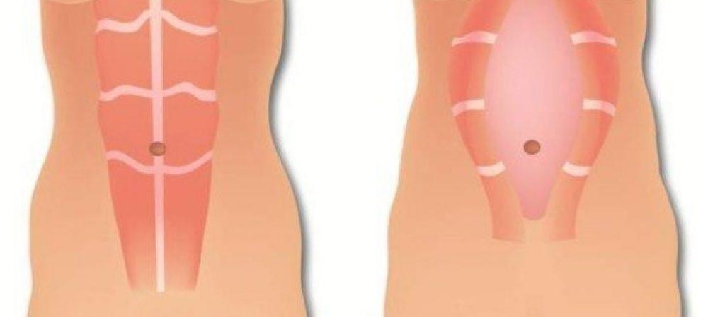 barriga flácida tem solução sem abdominoplastia