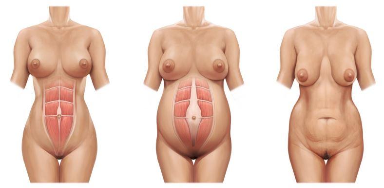 Como recuperar a barriga sem abdominoplastia