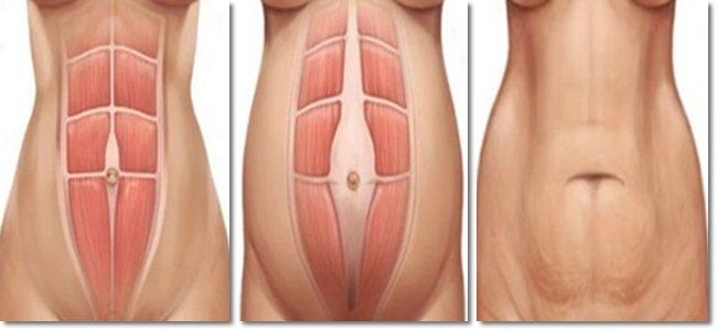 Por que a barriga fica flácida depois da gravidez