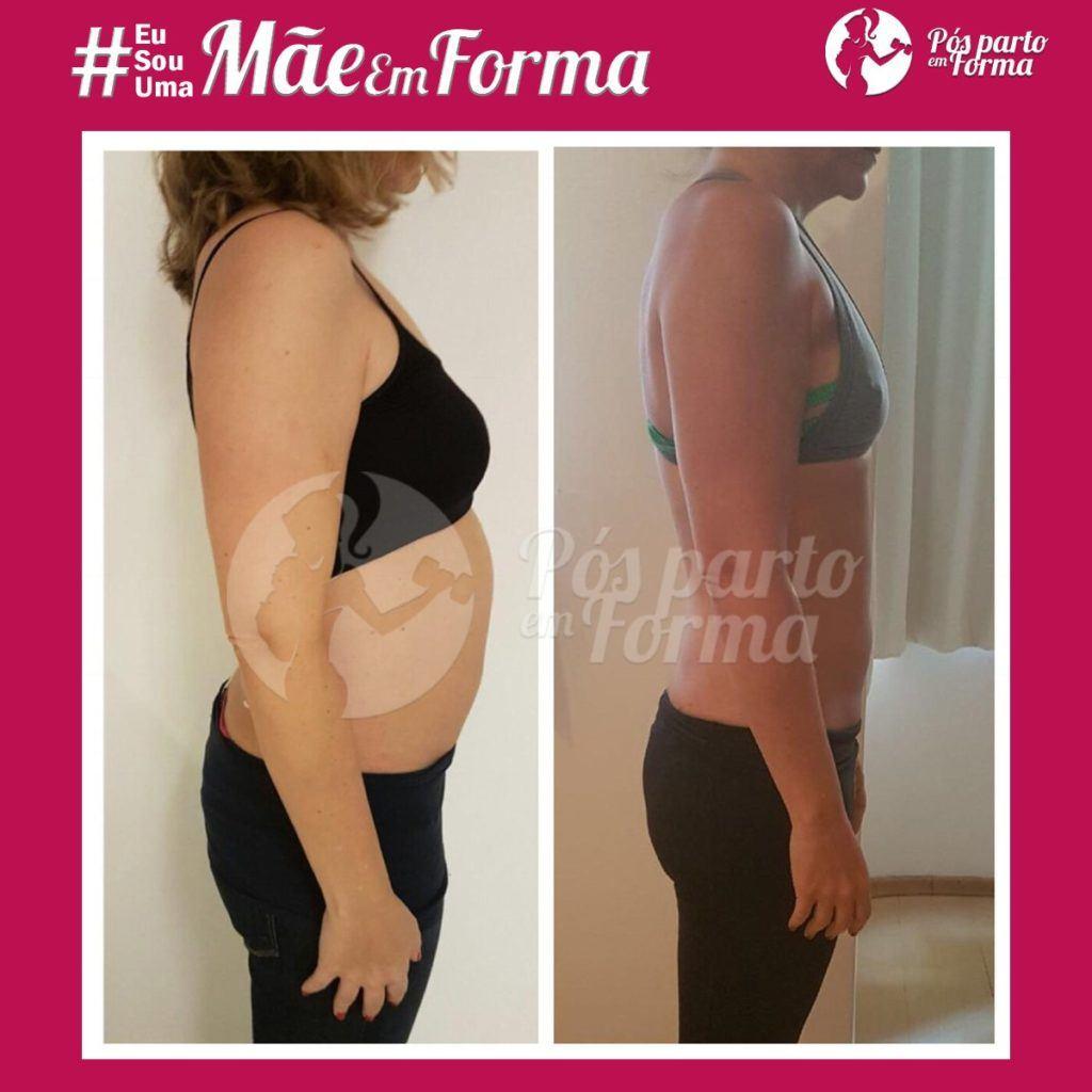 Consequências da diástase abdominal para a saúde