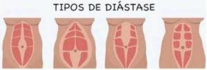 tipos de diastase