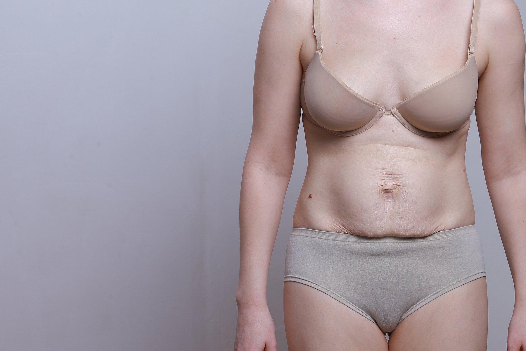 Tratamentos estéticos não devolvem a barriga